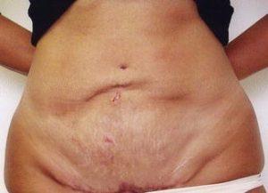 неровная кожа после операции