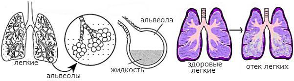 осложнения операции абдоминопластика