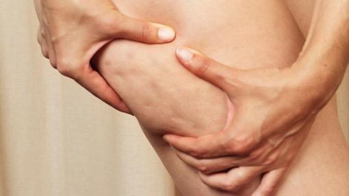 озонотерапия в борьбе с целлюлитом