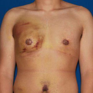 осложнения после липосакции груди
