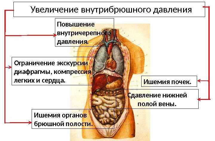 последствия абдоминопластики