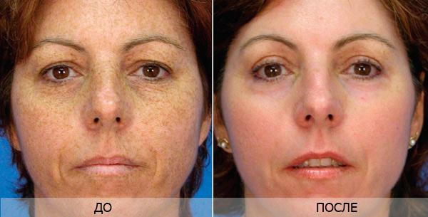 осложнения после лазерного пилинга лица