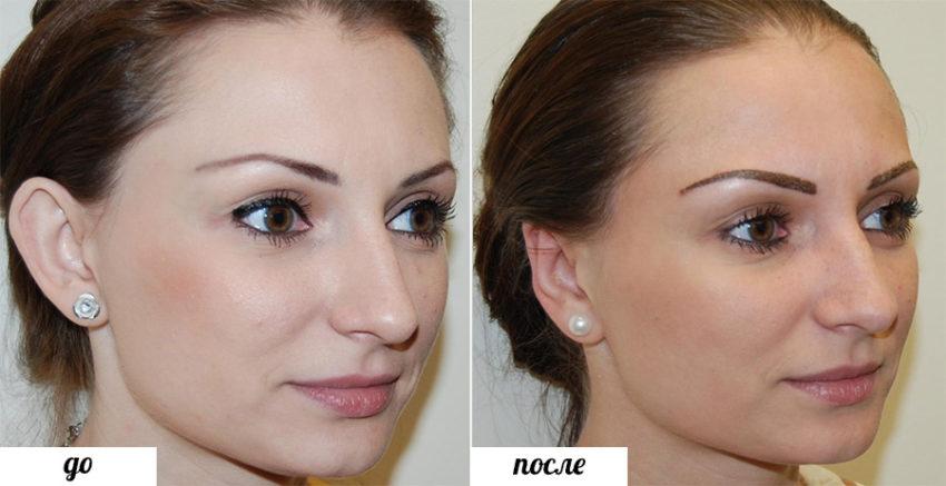 операция по коррекции формы ушей