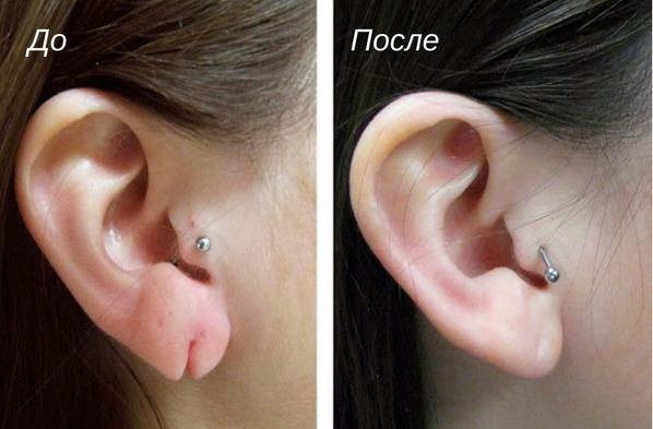 результат пластики мочки уха