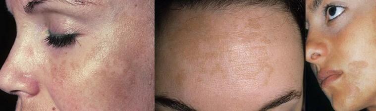 осложнения после пилинга лица