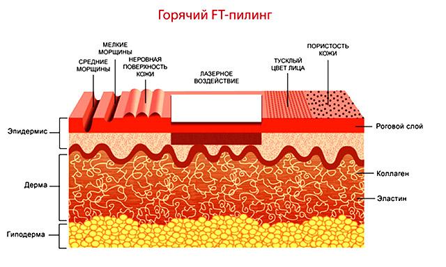 механизм действия лазера на кожу