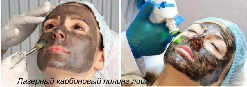 варианты лазерного пилинга лица