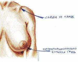 редукционная маммопластика и показания к ней