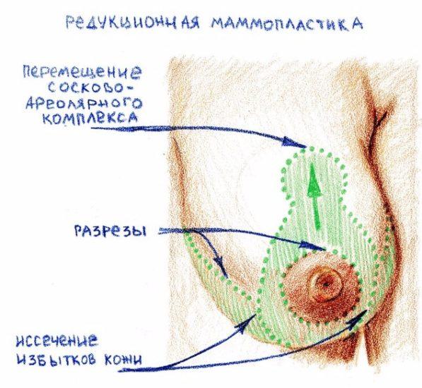 коррекция размера молочной железы