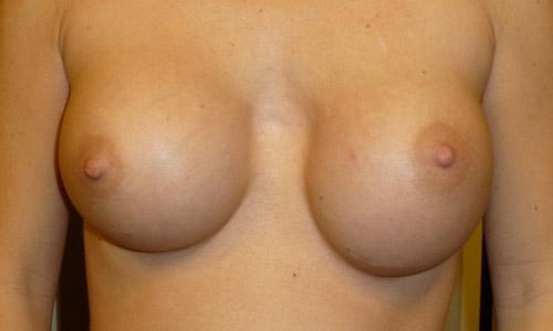 осложнения после маммопластики