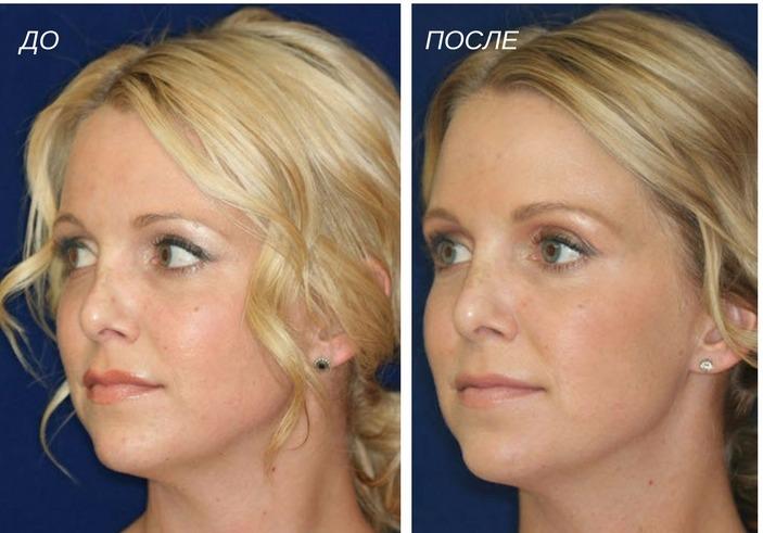 эффективность ринопластики носа