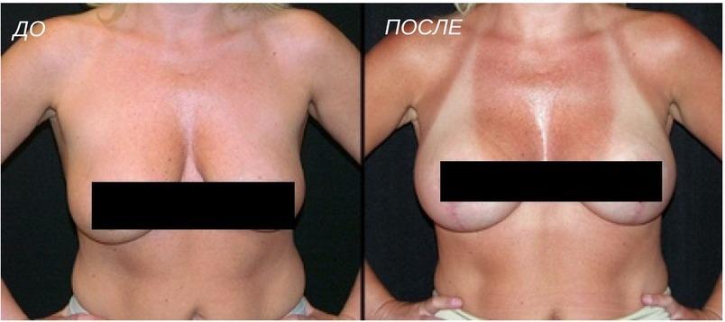 результат подтяжки груди