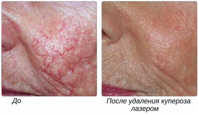 результаты лечения купероза