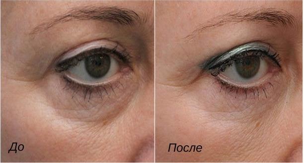 результаты от мезотерапии глаз