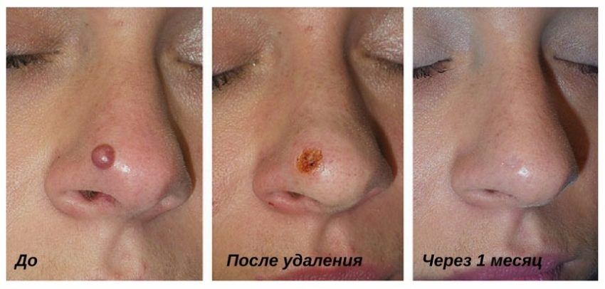 этапы рубцевания