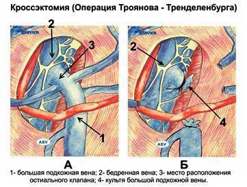 вариант флебэктомии