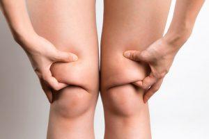 удаление лишнего жира с коленок