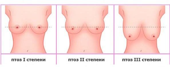 показания к вертикальной мастопексии