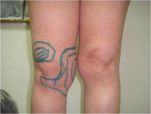 операция липосакция коленей