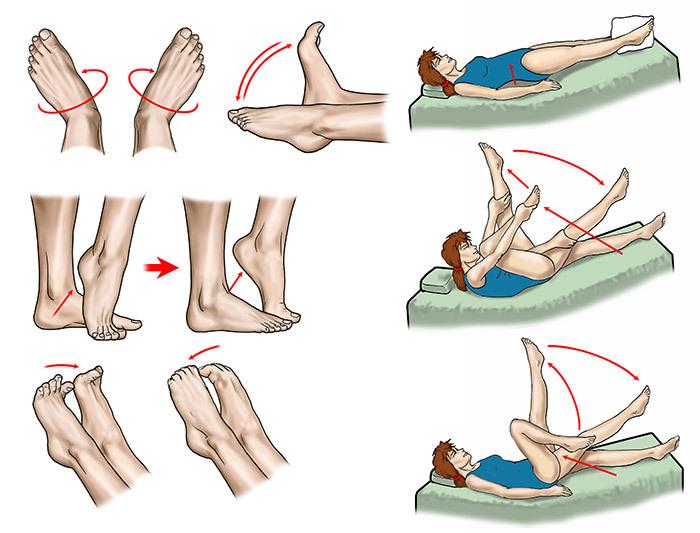 профилактика прогрессирования варикоза ног