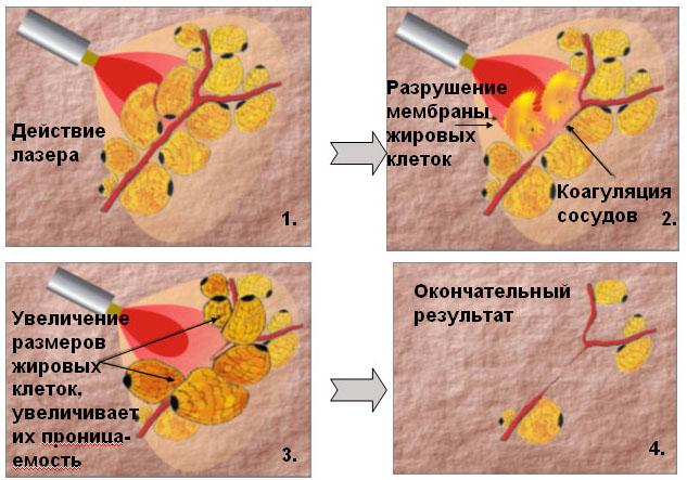 механизм действия лазерного липолиза