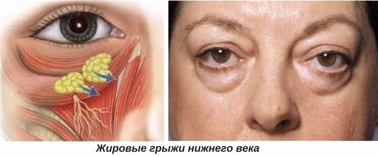 показания к инъекционной блефаропластике
