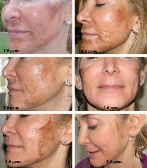 как проходит регенерация кожи после тса пилинга