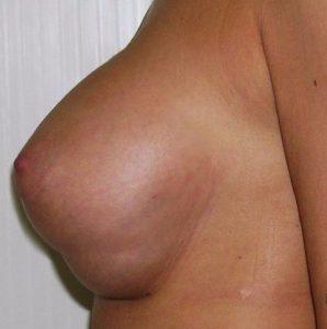 осложнение после маммопластики