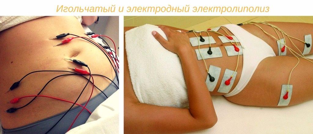 похудение электролиполизом