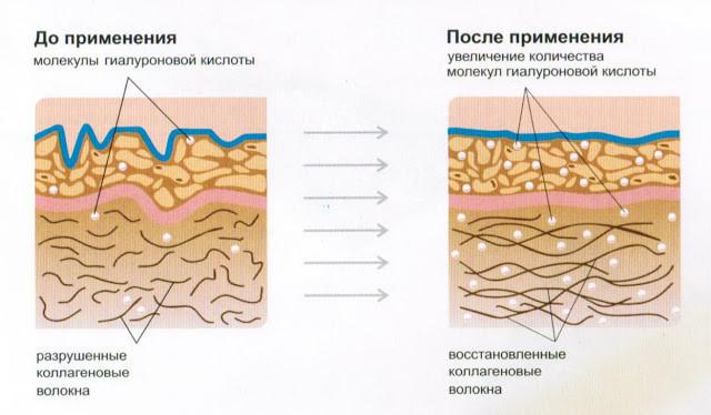 механизм действия гиалуронки