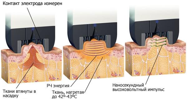механизм действия радиочастотного липолиза