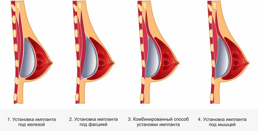 Варианты установки грудных имплантов