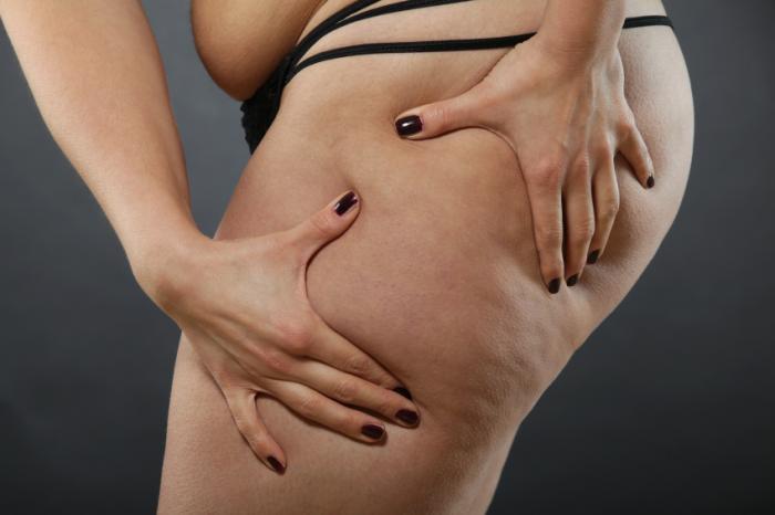 жир после липосакции