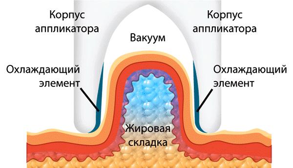 как работает криолиполиз