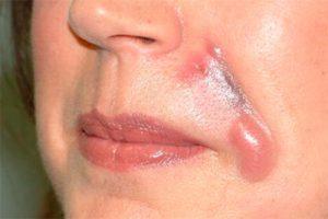 побочные эффекты от коррекции носогубных складок