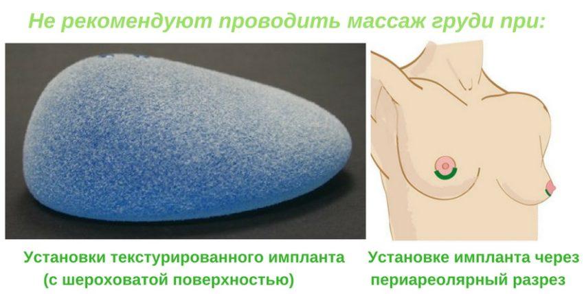 когда массаж груди после маммопластики запрещен