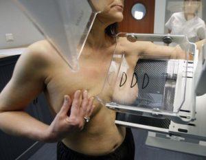подготовка к мастопексии