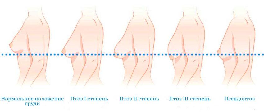показания к мастопексии
