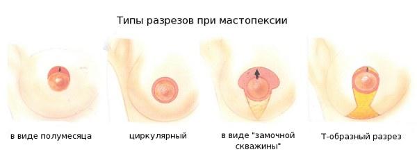 варианты оперирования при опущении груди