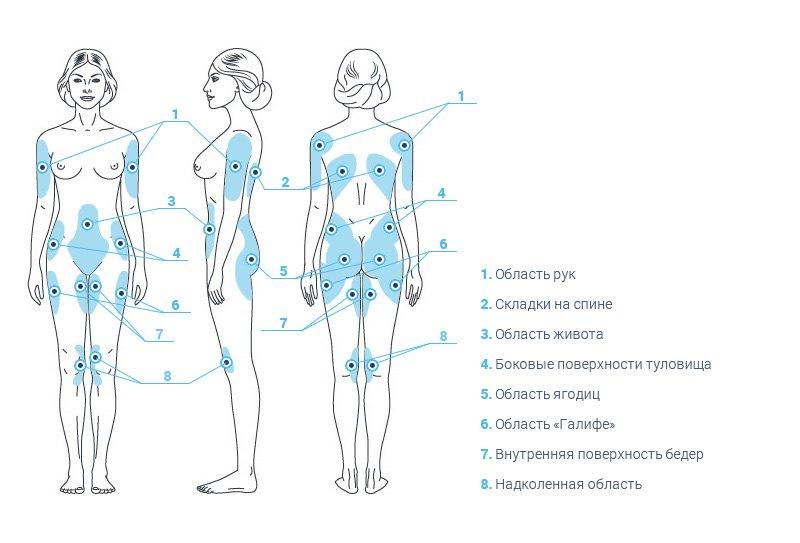 на каких частях тела использует криолиполиз