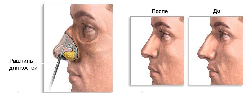 Исправление носа хирургически