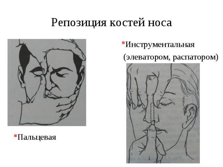 Исправление-носа-руками-и-инструментом