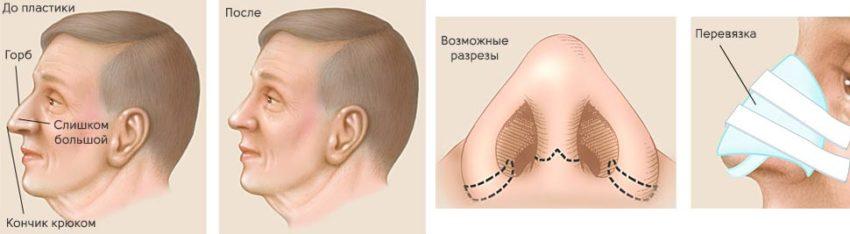 Исправление носа ринопластикой