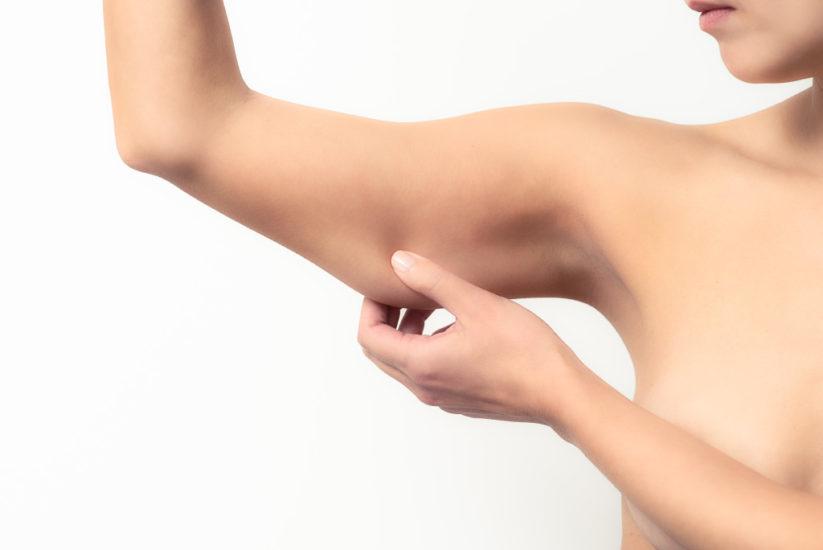 операция по подтяжке кожи рук