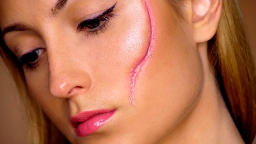 удаление шрама на лице лазером