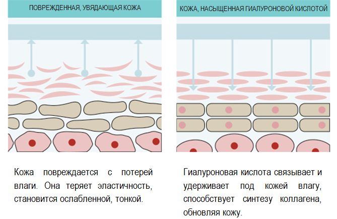 функция гиалуронки в коже