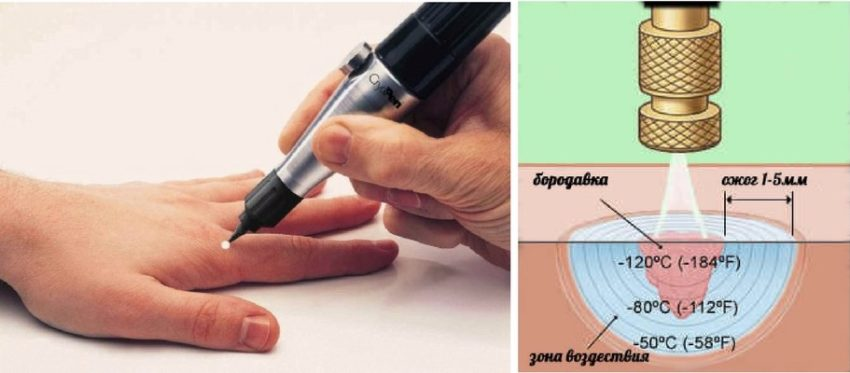 как работает жидкий азот на коже