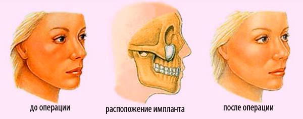 установка импланта при пластики скул