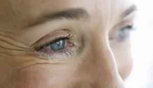 устранение морщин под глазами