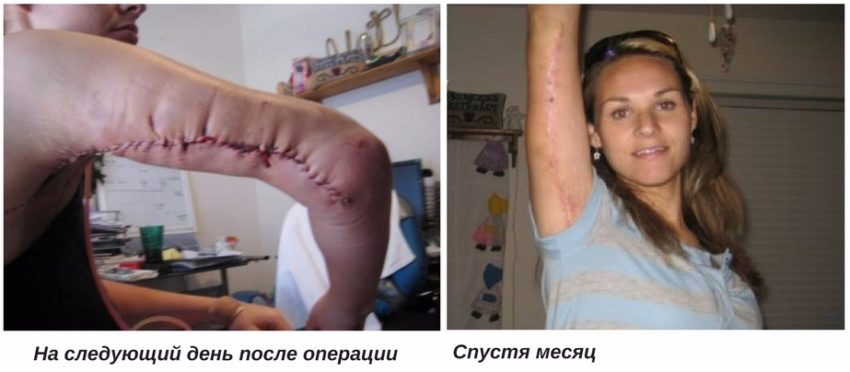 реабилитационный период после брахиопластики